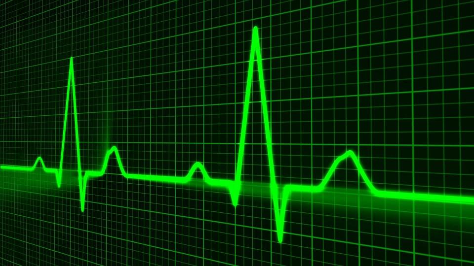 irregolarità cardiache