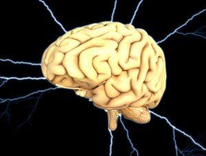 cervello, infarto