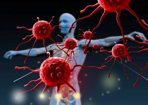 tumore la diagnosi dal respiro