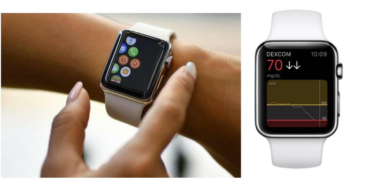 Apple Watch vende più dell'intera industria di orologi svizzera (nell'ultimo trimestre 2017)
