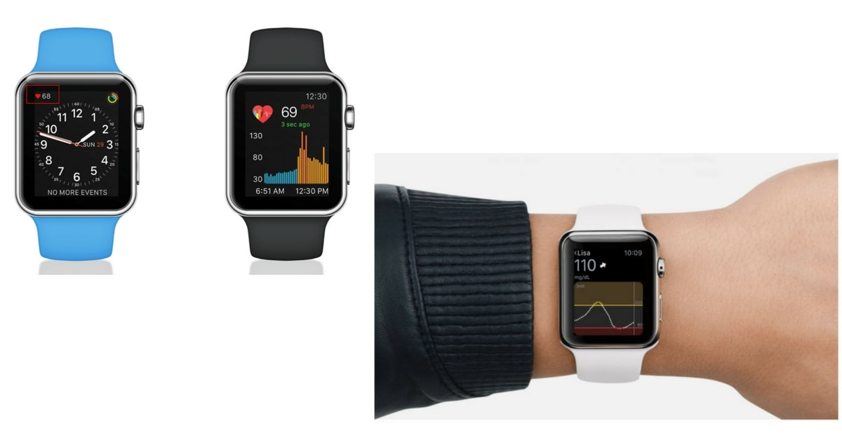 apple-watch-cardio-diabete