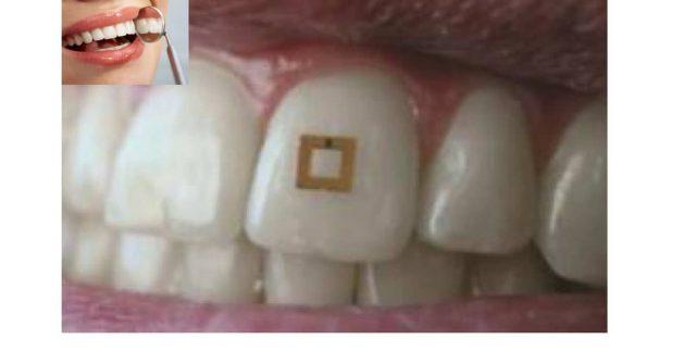 dente-sensore