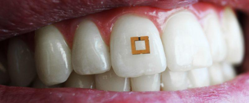 denti-sensori